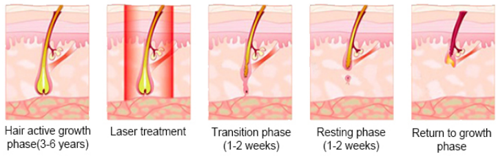 The Diode Laser with specific 808nm wavelength, the gold standard for hair removal, can emit the strong pulses to destroy the deep root of follicles. The strong pulses are very short so that they not only can destroy quickly targeted hair follicles but also does no harm to neighboring tissues, thus realizing the efficacy of permanent hair removal.