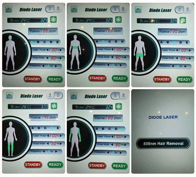 808nm diode laser hair removal machine screen