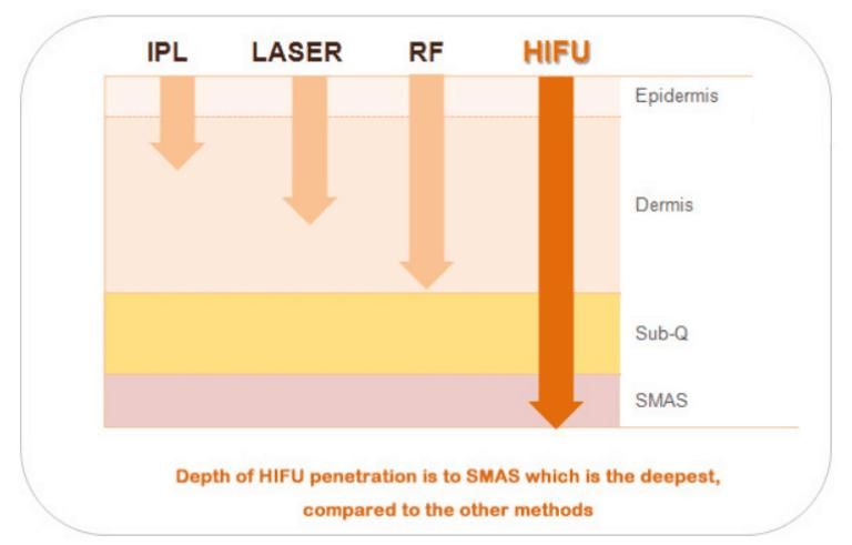 4D HIFU Machine Manufacturer