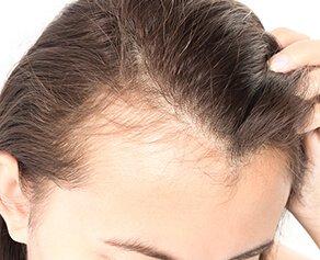 hair regowth machine