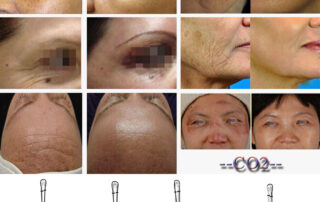 fractional CO2 laser treatment machine