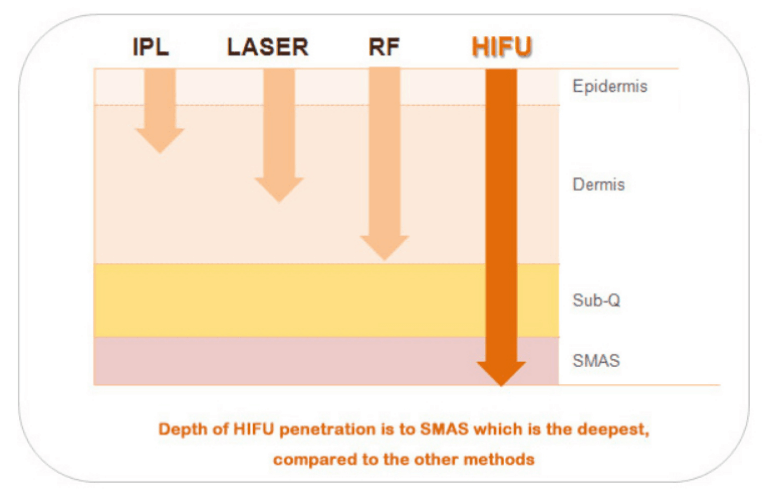 4D HIFU Machine Working THEORY: