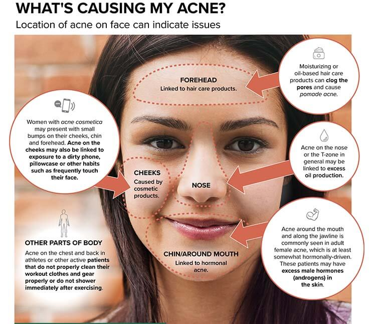 Co2 Laser For Acne Scars The Complete Introduction And Guide