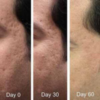 Co2 Laser For Acne Scars The Complete Introduction And Guide 1