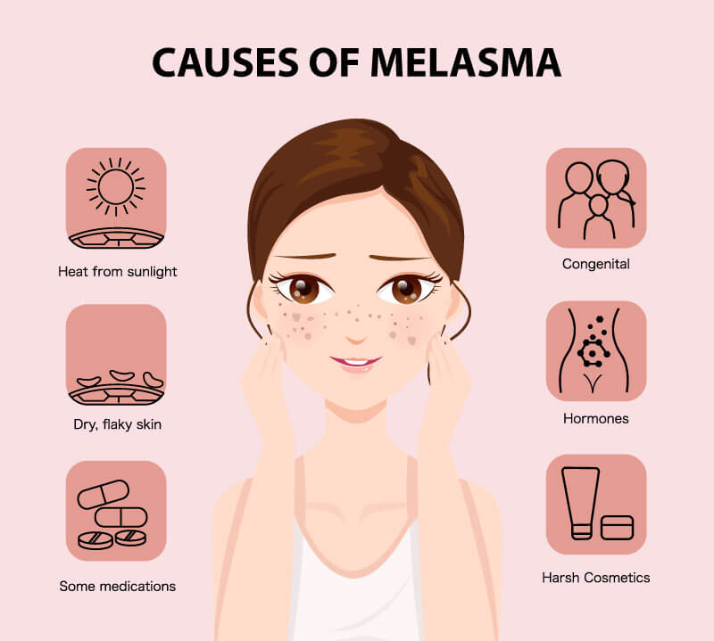 picosure for melasma (1)