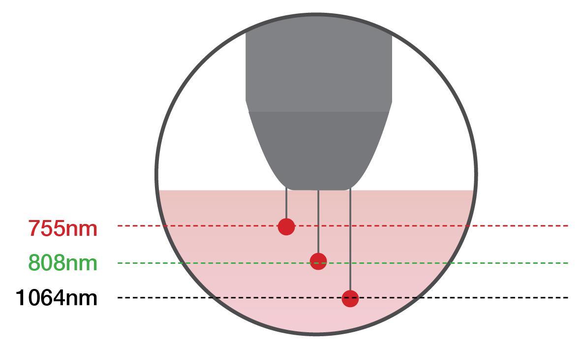 3 wavelength diode laser hair removal